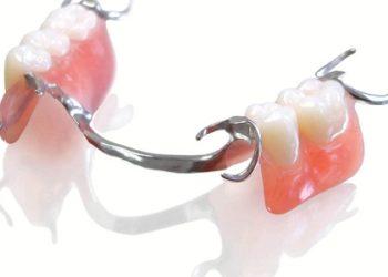 Partial-Dentures-750x500